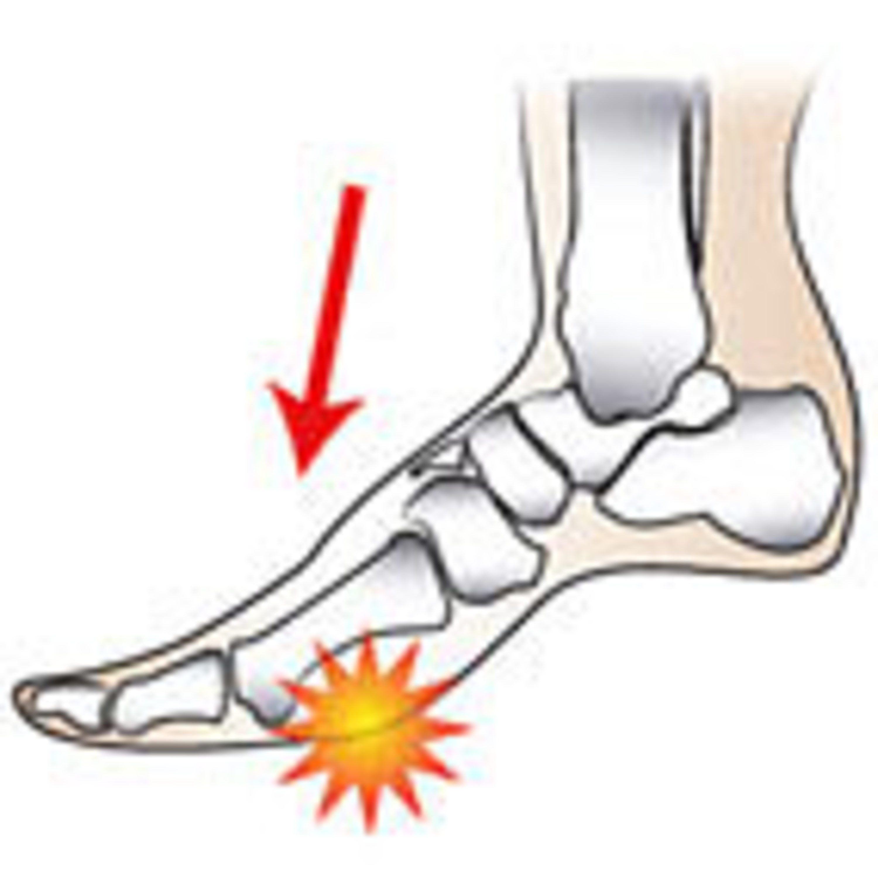 Episode 92: Ep92 - Forefoot pain