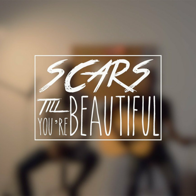 Scars To Your Beautiful Lyrics Alessia Cara Panda Cutie