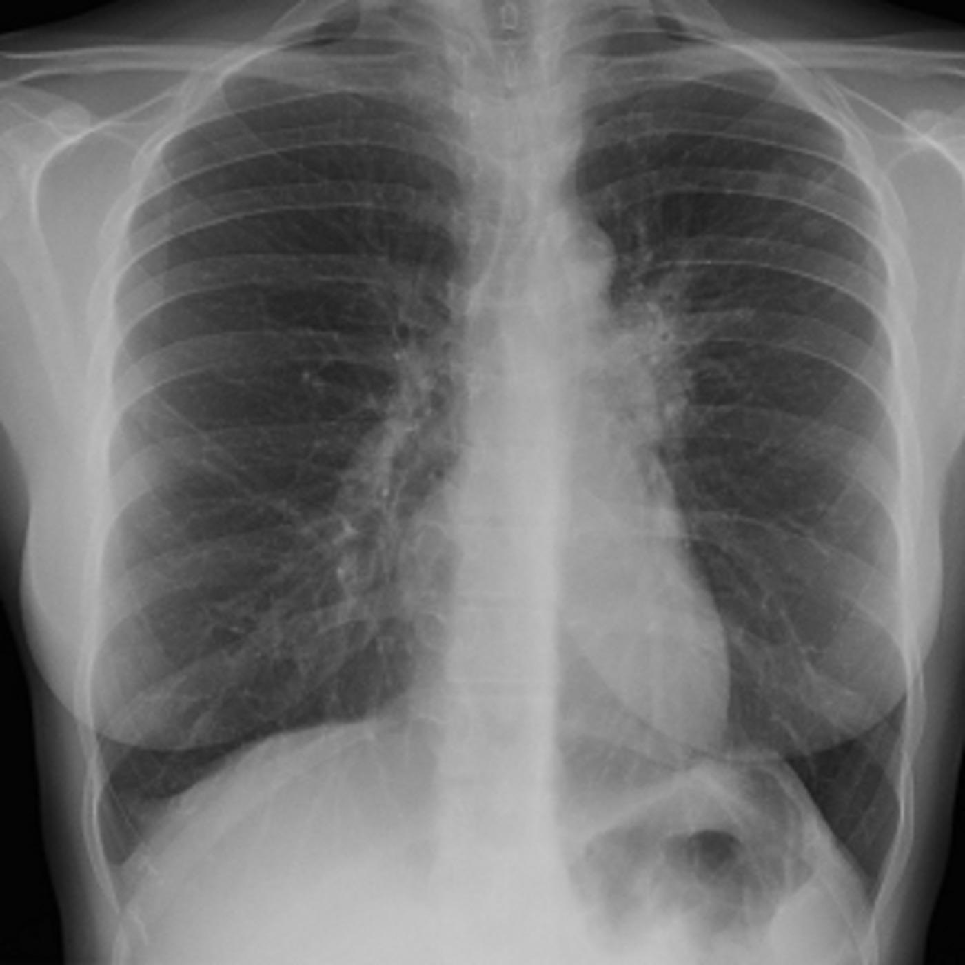 tuberculosis a disease making a comeback essay