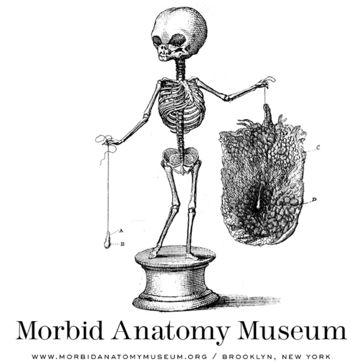 The Morbid Anatomy Transmission